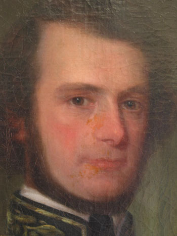 Detail of a portrait painting marred by splotchy, discolored overpaint from old restoration work.